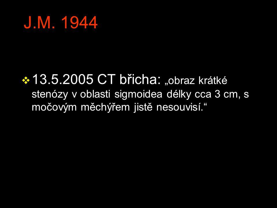 """J.M. 1944 v 13.5.2005 CT břicha: """"obraz krátké stenózy v oblasti sigmoidea délky cca 3 cm, s močovým měchýřem jistě nesouvisí."""""""