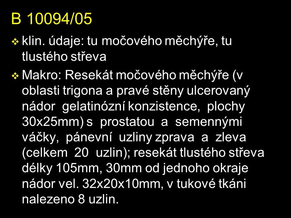 B 10094/05 v klin.