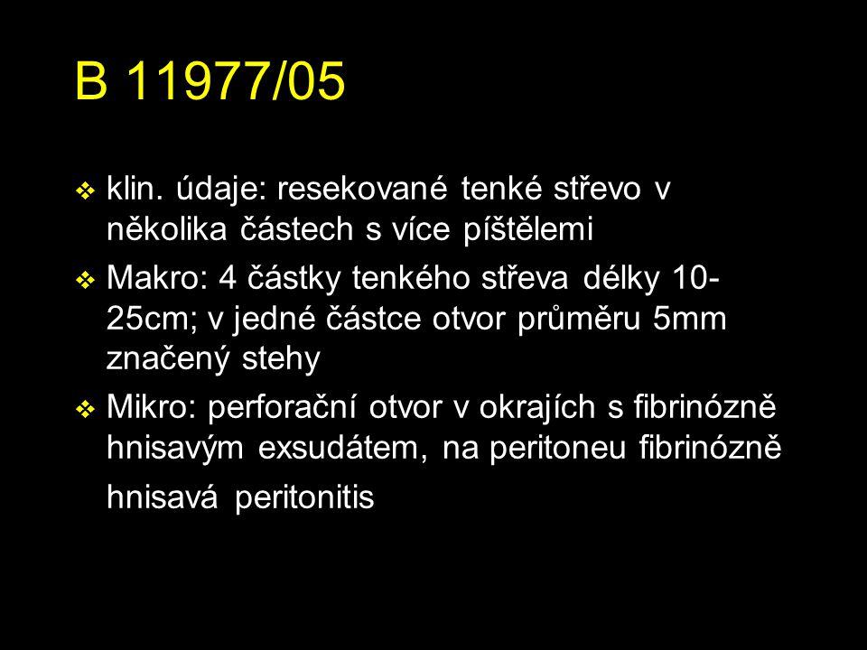 B 11977/05 v klin.