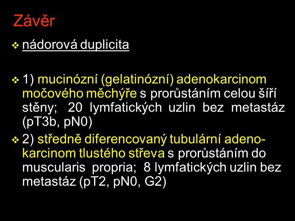 Závěr v nádorová duplicita v 1) mucinózní (gelatinózní) adenokarcinom močového měchýře s prorůstáním celou šíří stěny; 20 lymfatických uzlin bez metastáz (pT3b, pN0) v 2) středně diferencovaný tubulární adeno- karcinom tlustého střeva s prorůstáním do muscularis propria; 8 lymfatických uzlin bez metastáz (pT2, pN0, G2)