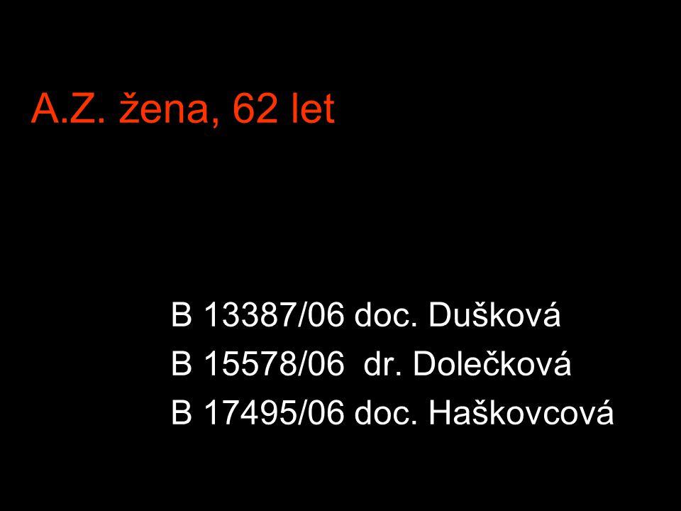 A.Z. žena, 62 let B 13387/06 doc. Dušková B 15578/06 dr. Dolečková B 17495/06 doc. Haškovcová