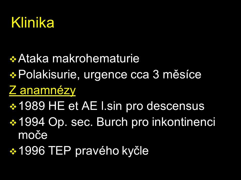 Klinika v Ataka makrohematurie v Polakisurie, urgence cca 3 měsíce Z anamnézy v 1989 HE et AE l.sin pro descensus v 1994 Op.