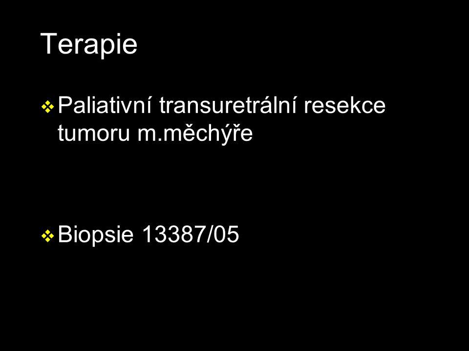 Terapie v Paliativní transuretrální resekce tumoru m.měchýře v Biopsie 13387/05