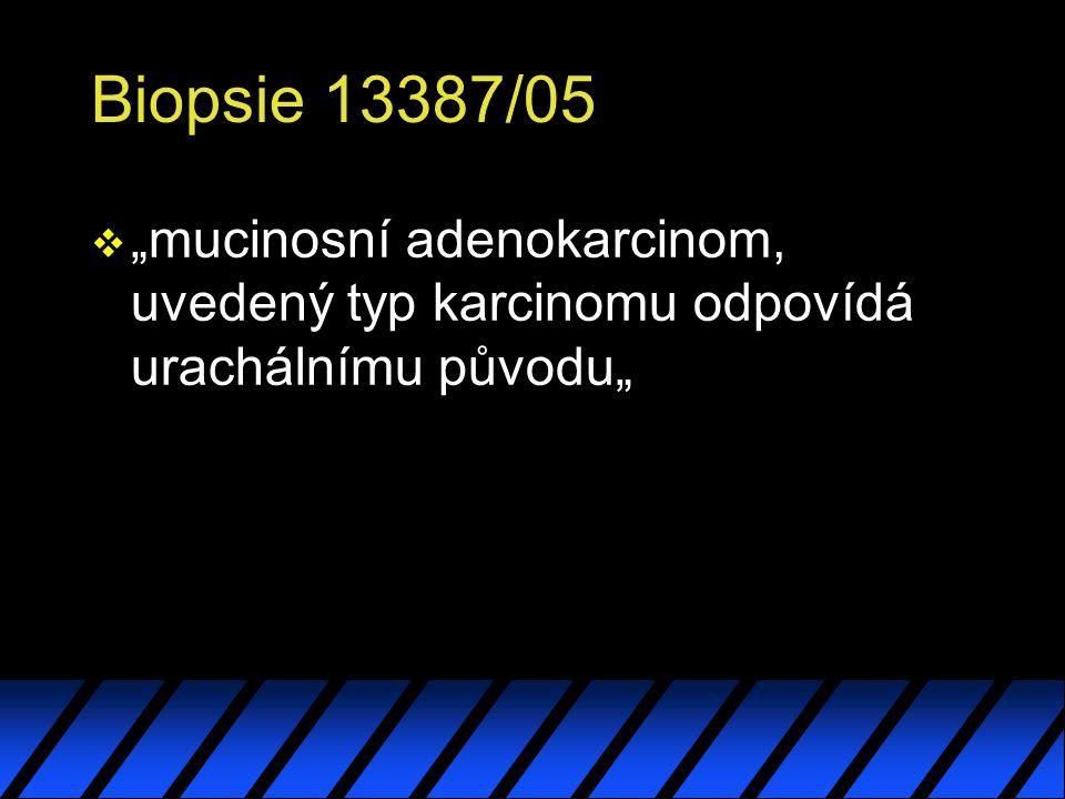 """Biopsie 13387/05 v """"mucinosní adenokarcinom, uvedený typ karcinomu odpovídá urachálnímu původu"""""""