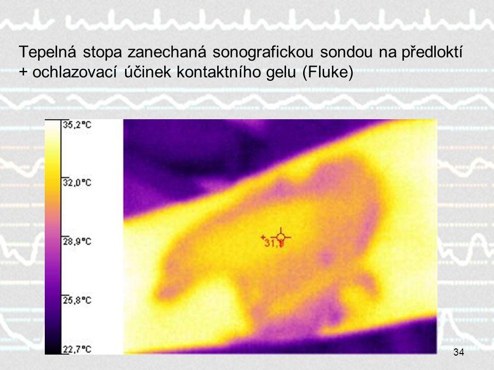 34 Tepelná stopa zanechaná sonografickou sondou na předloktí + ochlazovací účinek kontaktního gelu (Fluke)