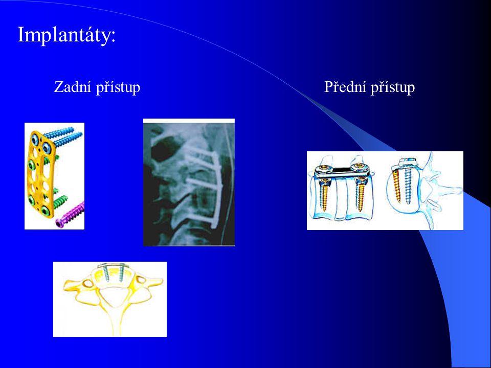 Implantáty: Zadní přístupPřední přístup