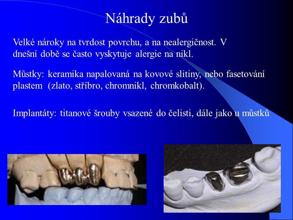 Náhrady zubů Můstky: keramika napalovaná na kovové slitiny, nebo fasetování plastem (zlato, stříbro, chromnikl, chromkobalt).