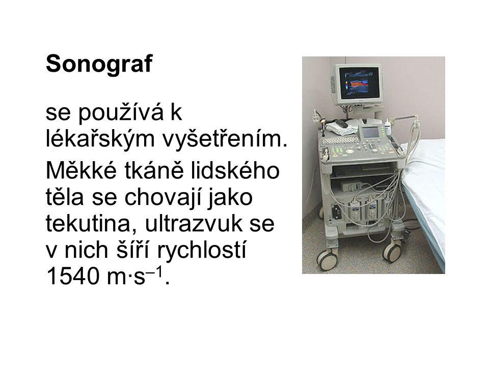 Sonograf se používá k lékařským vyšetřením. Měkké tkáně lidského těla se chovají jako tekutina, ultrazvuk se v nich šíří rychlostí 1540 m∙s –1.