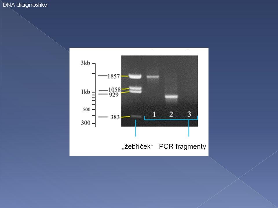 """""""žebříček"""" PCR fragmenty DNA diagnostika"""