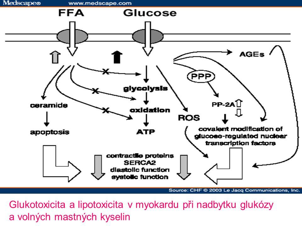Glukotoxicita a lipotoxicita v myokardu při nadbytku glukózy a volných mastných kyselin