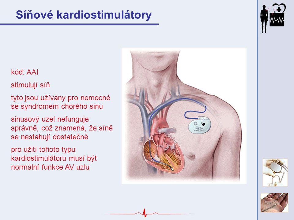 Síňové kardiostimulátory kód: AAI stimulují síň tyto jsou užívány pro nemocné se syndromem chorého sinu sinusový uzel nefunguje správně, což znamená,