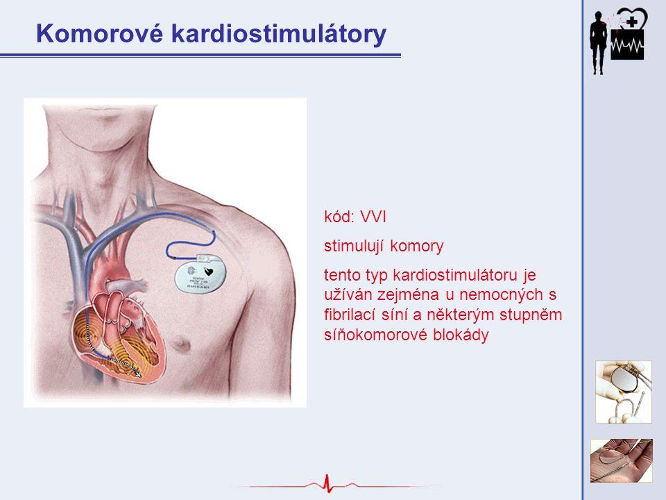 kód: VVI stimulují komory tento typ kardiostimulátoru je užíván zejména u nemocných s fibrilací síní a některým stupněm síňokomorové blokády Komorové