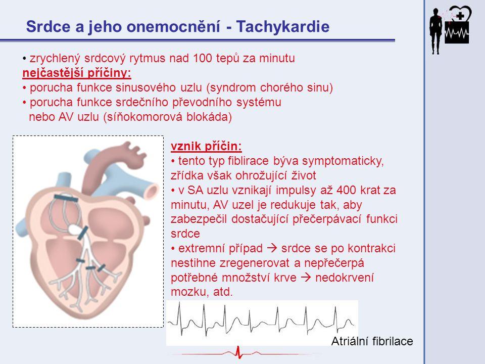 Srdce a jeho onemocnění - Tachykardie zrychlený srdcový rytmus nad 100 tepů za minutu nejčastější příčiny: porucha funkce sinusového uzlu (syndrom cho