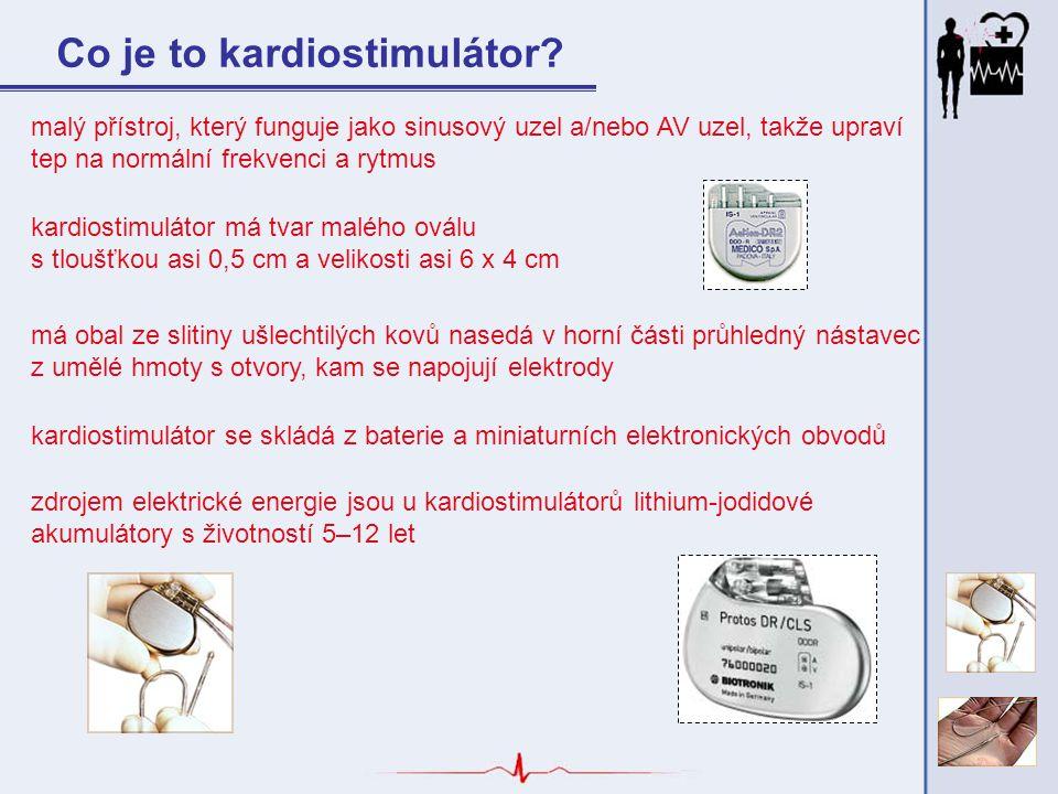 Co je to kardiostimulátor? malý přístroj, který funguje jako sinusový uzel a/nebo AV uzel, takže upraví tep na normální frekvenci a rytmus kardiostimu