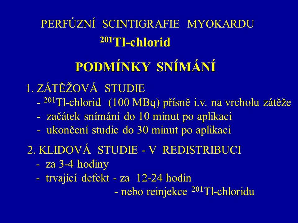 PERFÚZNÍ SCINTIGRAFIE MYOKARDU 201 Tl-chlorid PODMÍNKY SNÍMÁNÍ 1. ZÁTĚŽOVÁ STUDIE - 201 Tl-chlorid (100 MBq) přísně i.v. na vrcholu zátěže - začátek s