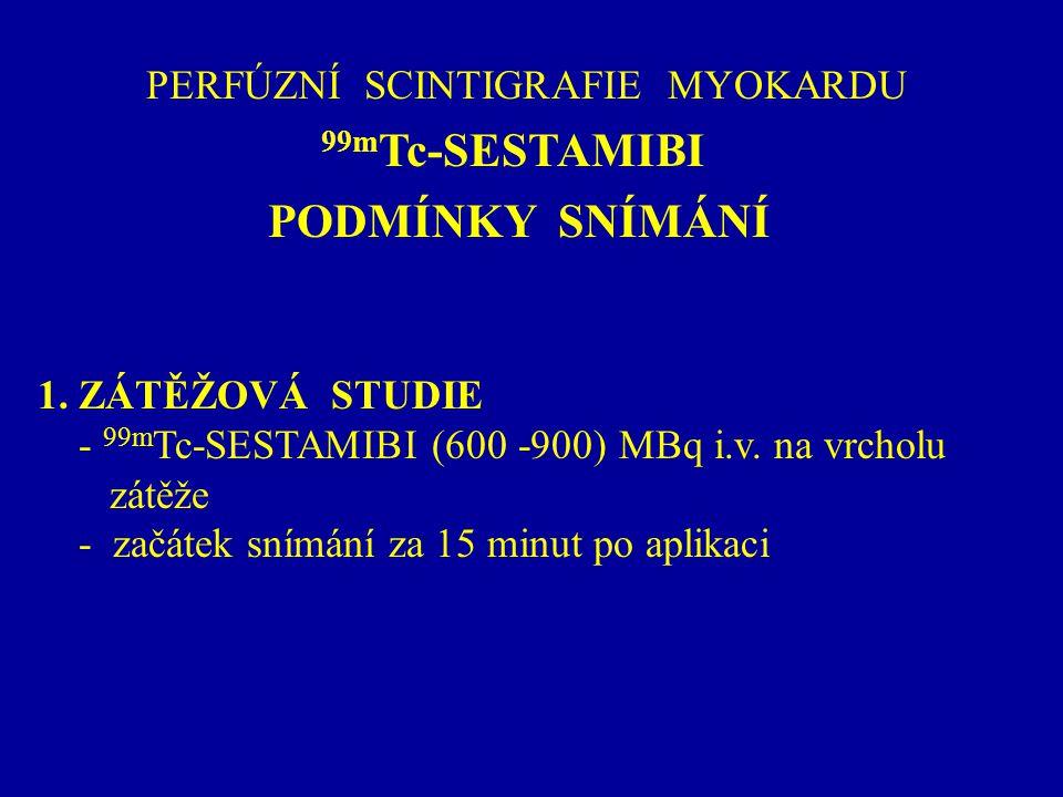 PERFÚZNÍ SCINTIGRAFIE MYOKARDU 99m Tc-SESTAMIBI PODMÍNKY SNÍMÁNÍ 1. ZÁTĚŽOVÁ STUDIE - 99m Tc-SESTAMIBI (600 -900) MBq i.v. na vrcholu zátěže - začátek