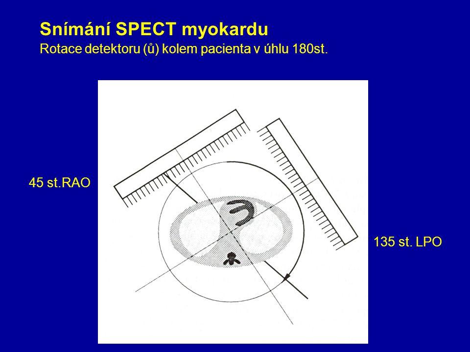 Snímání SPECT myokardu Rotace detektoru (ů) kolem pacienta v úhlu 180st. 45 st.RAO 135 st. LPO