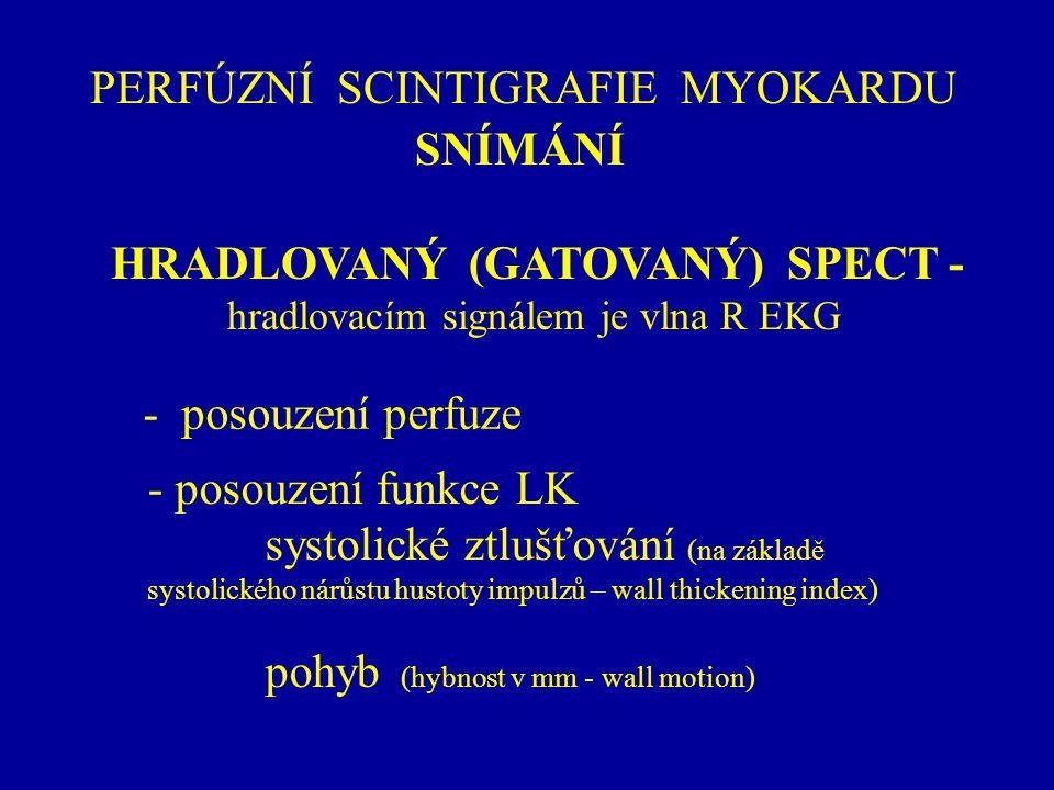 PERFÚZNÍ SCINTIGRAFIE MYOKARDU SNÍMÁNÍ HRADLOVANÝ (GATOVANÝ) SPECT - hradlovacím signálem je vlna R EKG - posouzení funkce LK systolické ztlušťování (