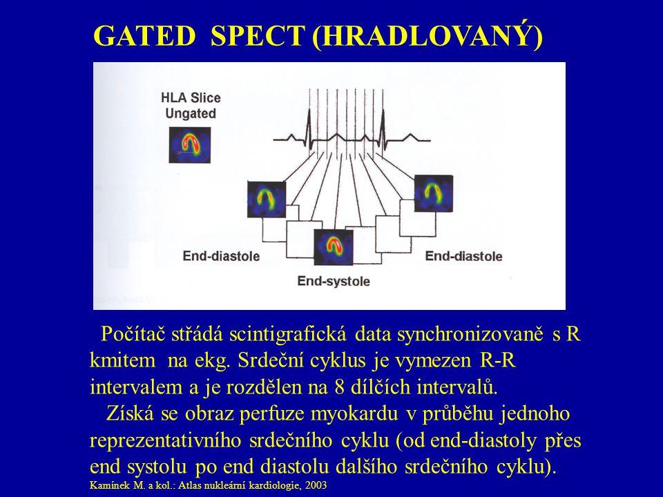 GATED SPECT (HRADLOVANÝ) Počítač střádá scintigrafická data synchronizovaně s R kmitem na ekg. Srdeční cyklus je vymezen R-R intervalem a je rozdělen