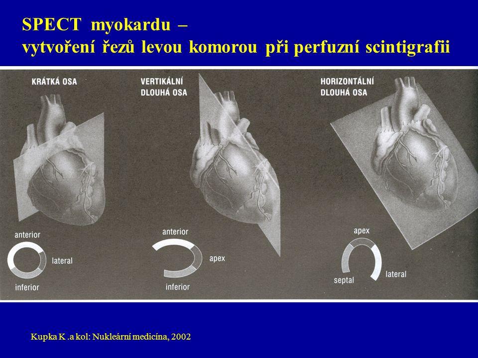 SPECT myokardu – vytvoření řezů levou komorou při perfuzní scintigrafii Kupka K.a kol: Nukleární medicína, 2002