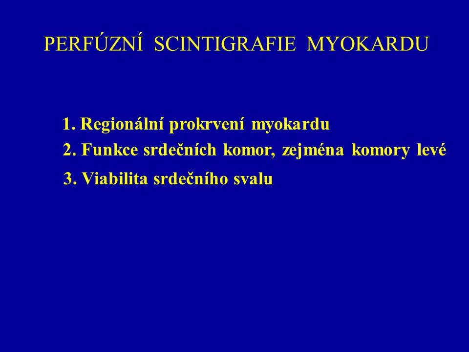 VIABILITA MYOKARDU Perfúzní SPECT myokardu po podání 99m Tc-SESTAMIBI SPECT zátěž - klid v kombinaci s podáním nitroglycerinu 3 min před aplikací MIBI v klidu