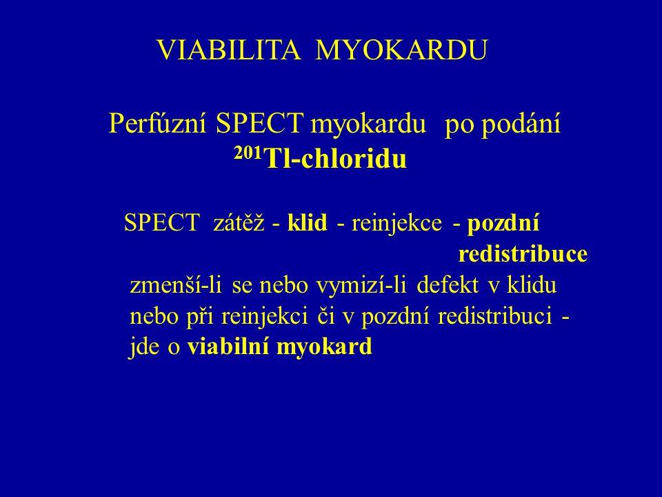 VIABILITA MYOKARDU Perfúzní SPECT myokardu po podání 201 Tl-chloridu SPECT zátěž - klid - reinjekce - pozdní redistribuce zmenší-li se nebo vymizí-li