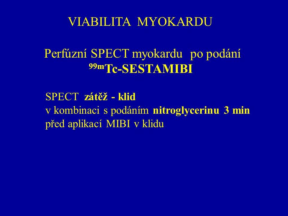 VIABILITA MYOKARDU Perfúzní SPECT myokardu po podání 99m Tc-SESTAMIBI SPECT zátěž - klid v kombinaci s podáním nitroglycerinu 3 min před aplikací MIBI