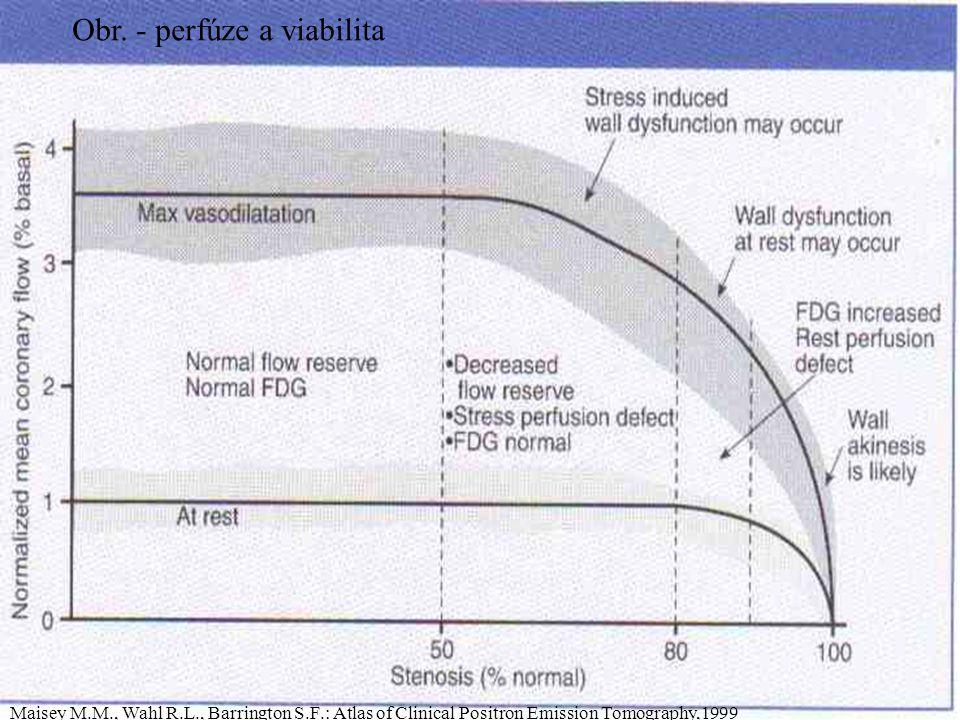 Obr. - perfúze a viabilita Maisey M.M., Wahl R.L., Barrington S.F.: Atlas of Clinical Positron Emission Tomography,1999
