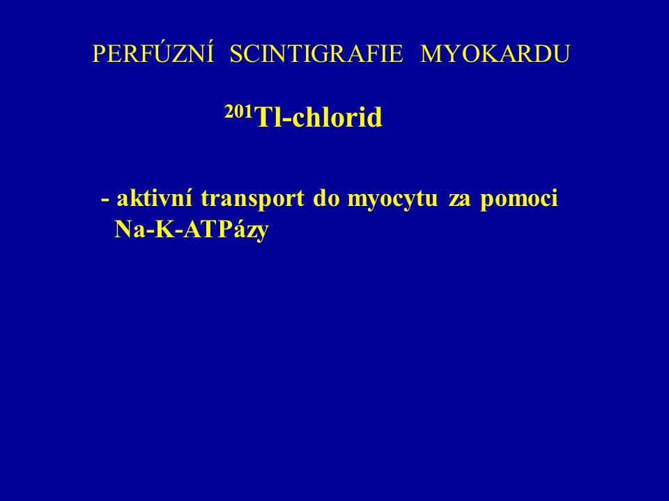 PERFÚZNÍ SCINTIGRAFIE MYOKARDU 201 Tl-chlorid - aktivní transport do myocytu za pomoci Na-K-ATPázy