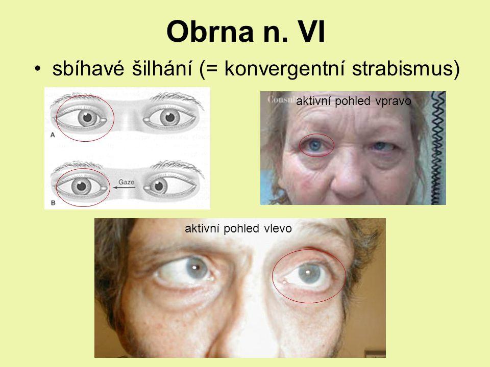Obrna n. VI sbíhavé šilhání (= konvergentní strabismus) aktivní pohled vpravo aktivní pohled vlevo