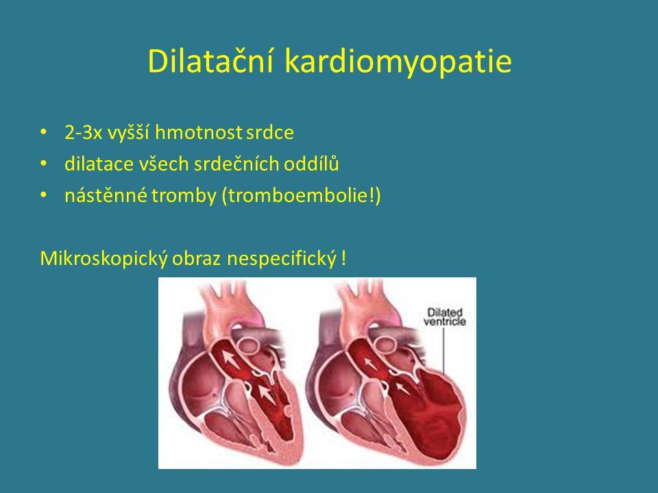 Dilatační kardiomyopatie 2-3x vyšší hmotnost srdce dilatace všech srdečních oddílů nástěnné tromby (tromboembolie!) Mikroskopický obraz nespecifický !