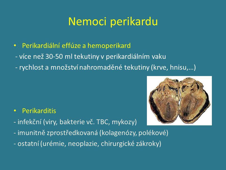Nemoci perikardu Perikardiální effúze a hemoperikard - více než 30-50 ml tekutiny v perikardiálním vaku - rychlost a množství nahromaděné tekutiny (krve, hnisu,…) Perikarditis - infekční (viry, bakterie vč.