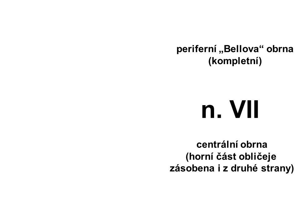 """periferní """"Bellova"""" obrna (kompletní) centrální obrna (horní část obličeje zásobena i z druhé strany) n. VII"""