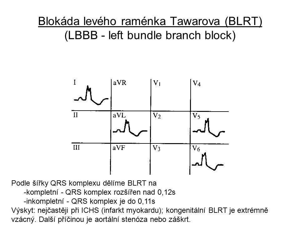 Blokáda levého raménka Tawarova (BLRT) (LBBB - left bundle branch block) Podle šířky QRS komplexu dělíme BLRT na -kompletní - QRS komplex rozšířen nad