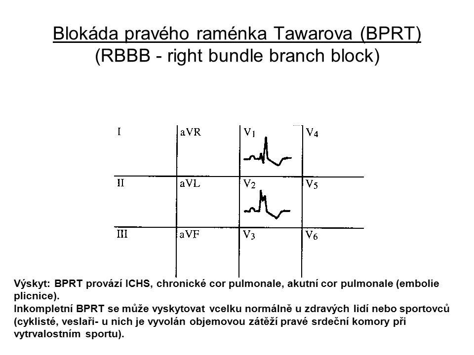 Blokáda pravého raménka Tawarova (BPRT) (RBBB - right bundle branch block) Výskyt: BPRT provází ICHS, chronické cor pulmonale, akutní cor pulmonale (e
