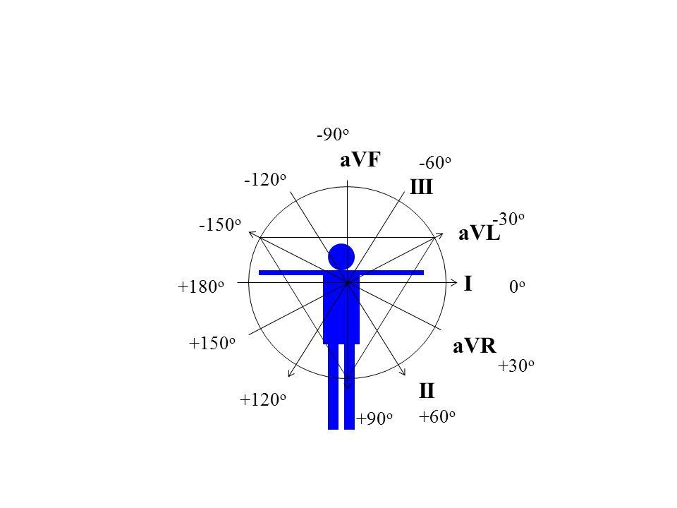 III I II aVL aVR aVF 0o0o +30 o +60 o +90 o +120 o +150 o +180 o -30 o -150 o -120 o -90 o -60 o