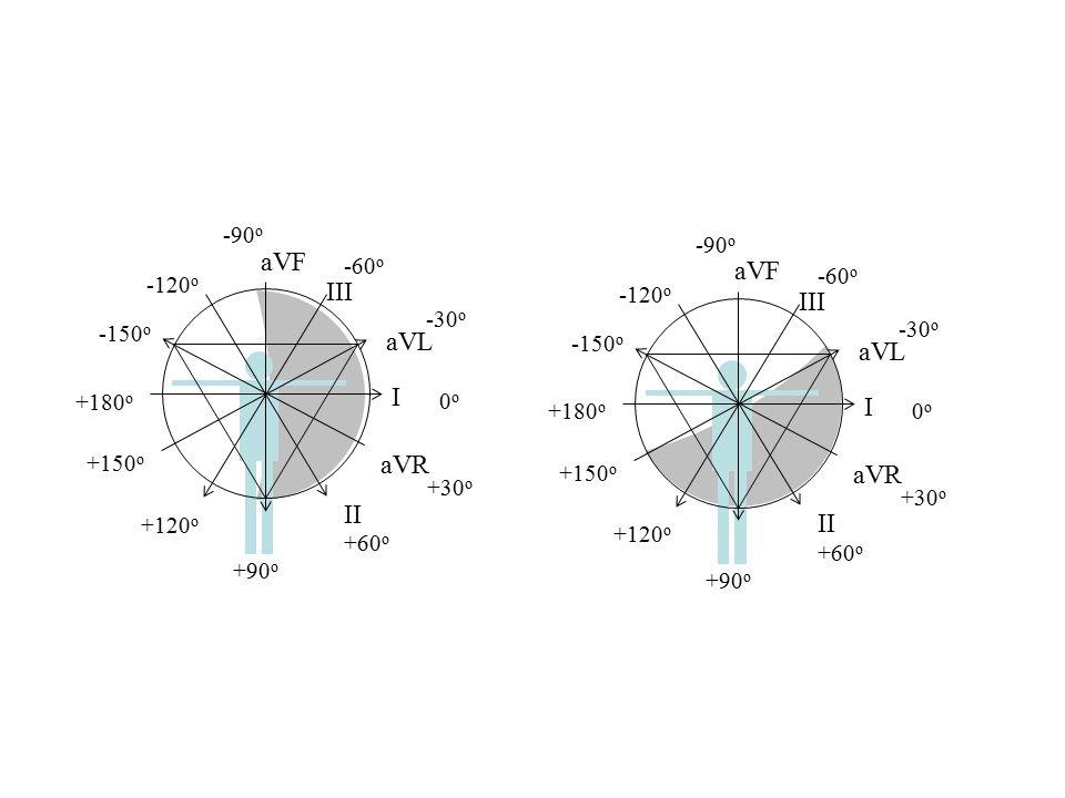 III I II aVL aVR aVF 0o0o +30 o +60 o +90 o +120 o +150 o +180 o -30 o -150 o -120 o -90 o -60 o III I II aVL aVR aVF 0o0o +30 o +60 o +90 o +120 o +1