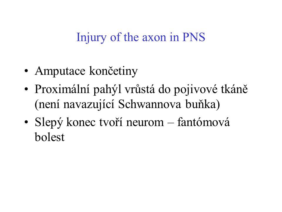 Injury of the axon in PNS Amputace končetiny Proximální pahýl vrůstá do pojivové tkáně (není navazující Schwannova buňka) Slepý konec tvoří neurom – f
