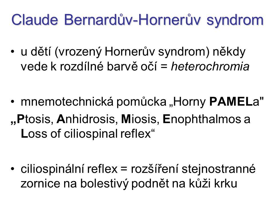 """Claude Bernardův-Hornerův syndrom u dětí (vrozený Hornerův syndrom) někdy vede k rozdílné barvě očí = heterochromia mnemotechnická pomůcka """"Horny PAMELa """"Ptosis, Anhidrosis, Miosis, Enophthalmos a Loss of ciliospinal reflex ciliospinální reflex = rozšíření stejnostranné zornice na bolestivý podnět na kůži krku"""