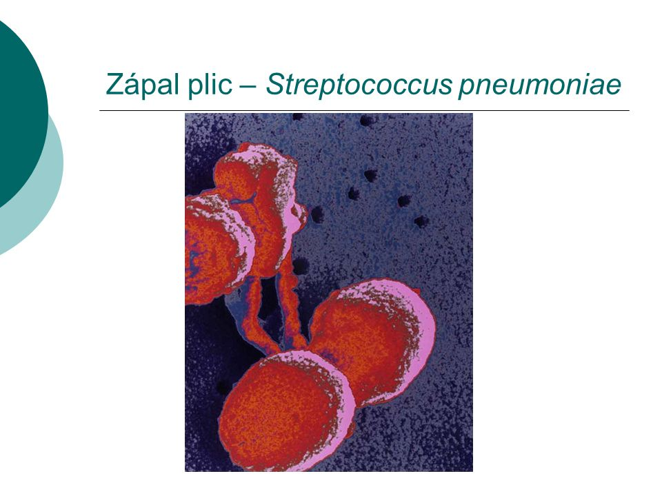 Zápal plic – Streptococcus pneumoniae