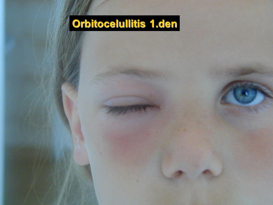 Orbitocelullitis 1.den