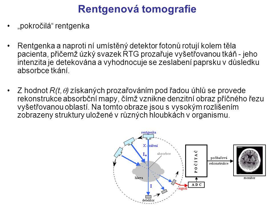 """Rentgenová tomografie """"pokročilá"""" rentgenka Rentgenka a naproti ní umístěný detektor fotonů rotují kolem těla pacienta, přičemž úzký svazek RTG prozař"""