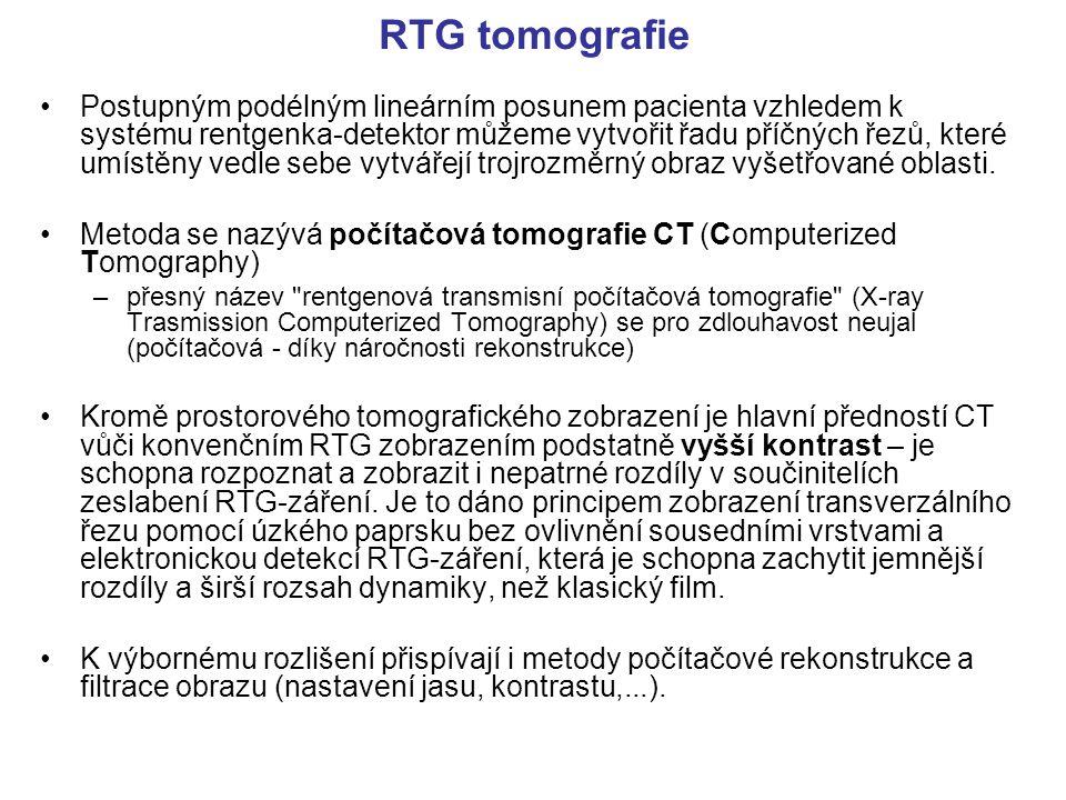 RTG tomografie Postupným podélným lineárním posunem pacienta vzhledem k systému rentgenka-detektor můžeme vytvořit řadu příčných řezů, které umístěny