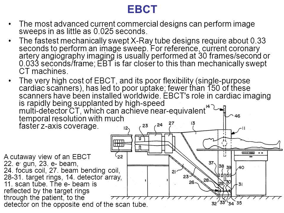 EBCT A cutaway view of an EBCT 22. e - gun, 23. e- beam, 24. focus coil, 27. beam bending coil, 28-31. target rings, 14. detector array, 11. scan tube