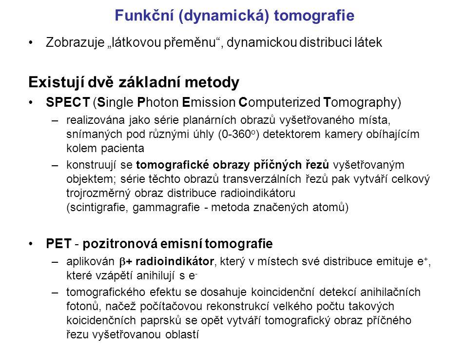 """Funkční (dynamická) tomografie Zobrazuje """"látkovou přeměnu"""", dynamickou distribuci látek Existují dvě základní metody SPECT (Single Photon Emission Co"""