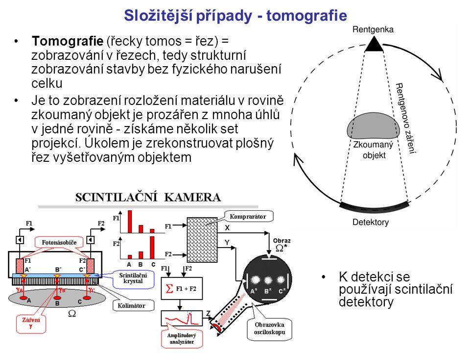 Složitější případy - tomografie Tomografie (řecky tomos = řez) = zobrazování v řezech, tedy strukturní zobrazování stavby bez fyzického narušení celku