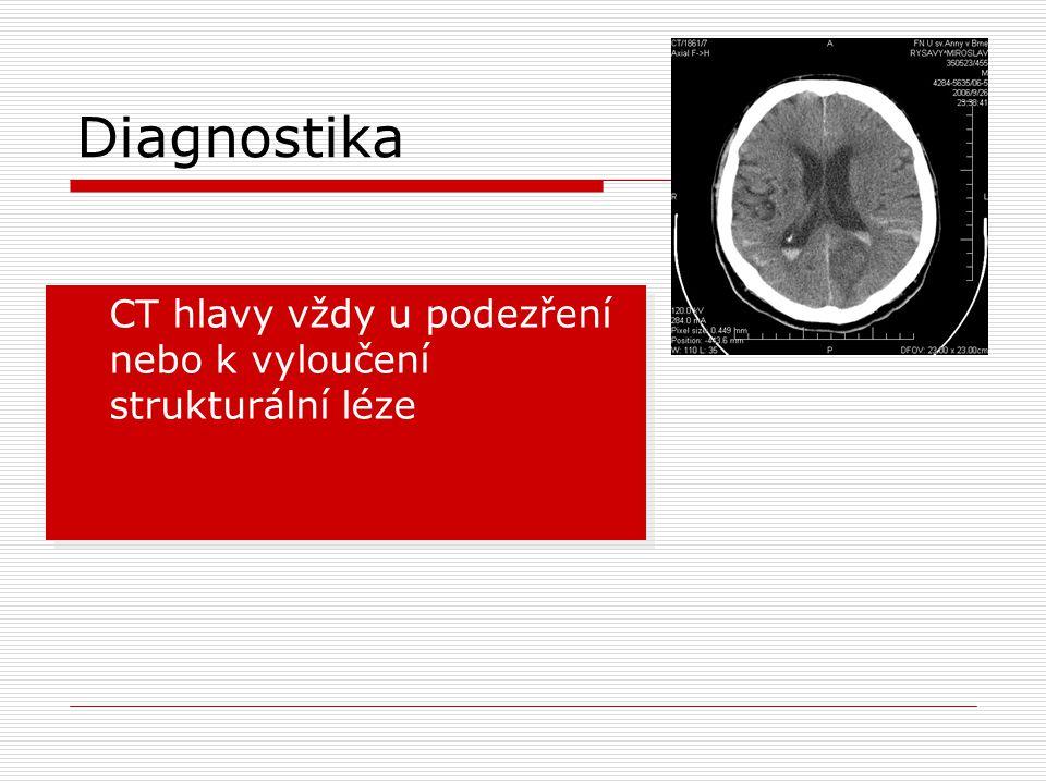 Diagnostika  CT hlavy vždy u podezření nebo k vyloučení strukturální léze