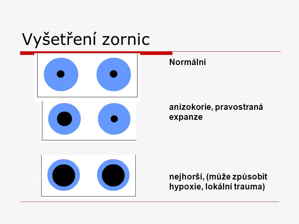 Vyšetření zornic Normální anizokorie, pravostraná expanze nejhorší, (může způsobit hypoxie, lokální trauma)