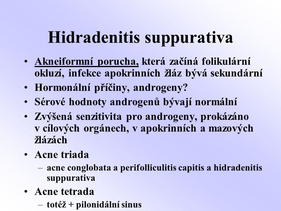 ISOTRETINOIN, ATB, PREDNISON Hidradenitis suppurativa Pacient č. 1