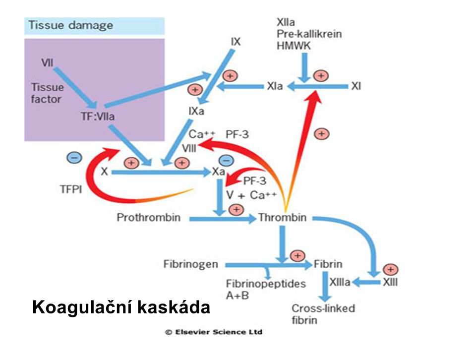 DIC Vyšší spotřeba se týká také přirozených antikoagulačních faktorů, což dále podporuje tendenci ke krevnímu srážení.